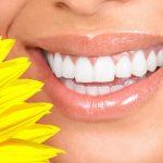 Luce una sonrisa hermosa con blanqueamiento dental en Barcelona
